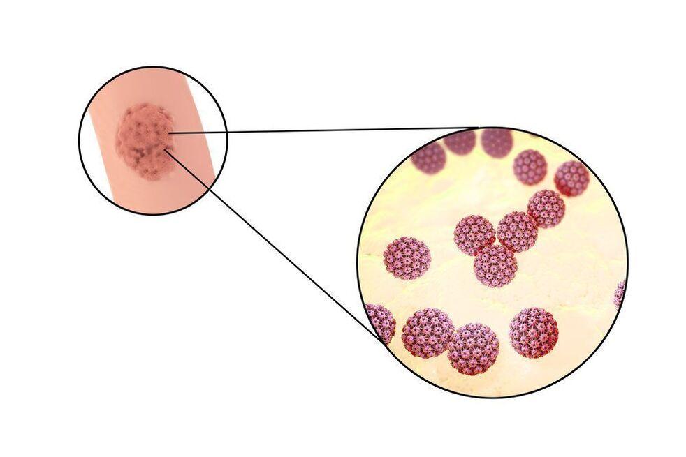 vârsta virusului papilomului uman